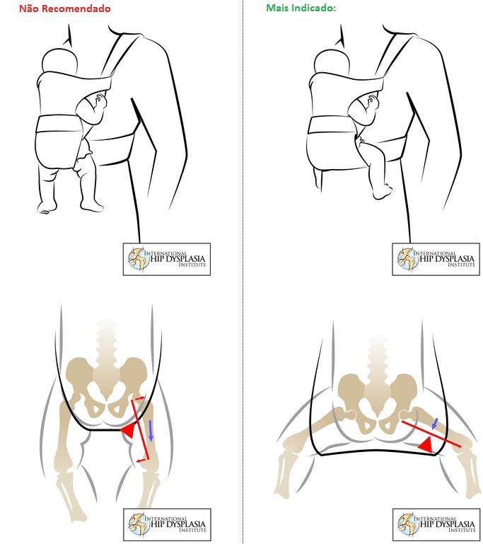 Displasia de quadril, quadro comparativo. Fonte: http://www.hipdysplasia.org