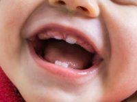 Aula de hoje:nascimento dos dentes.